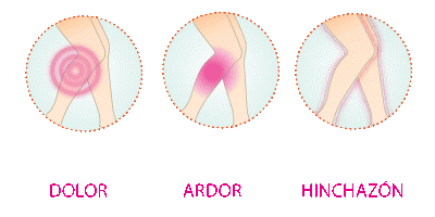 varices_20170330-141243_1.png